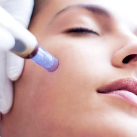 мезотерапия косметология