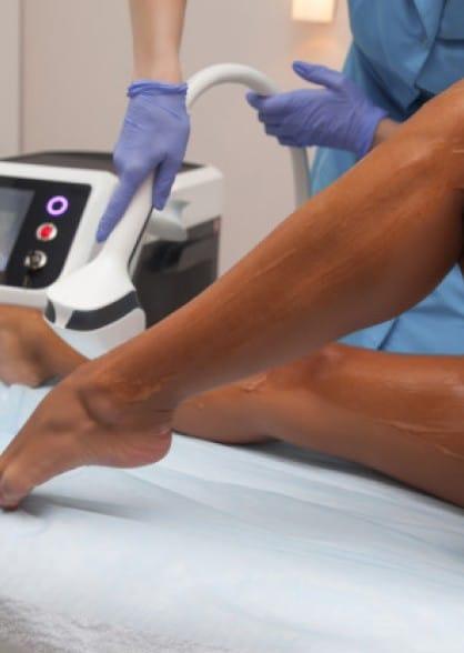 лазерная эпиляция процедура